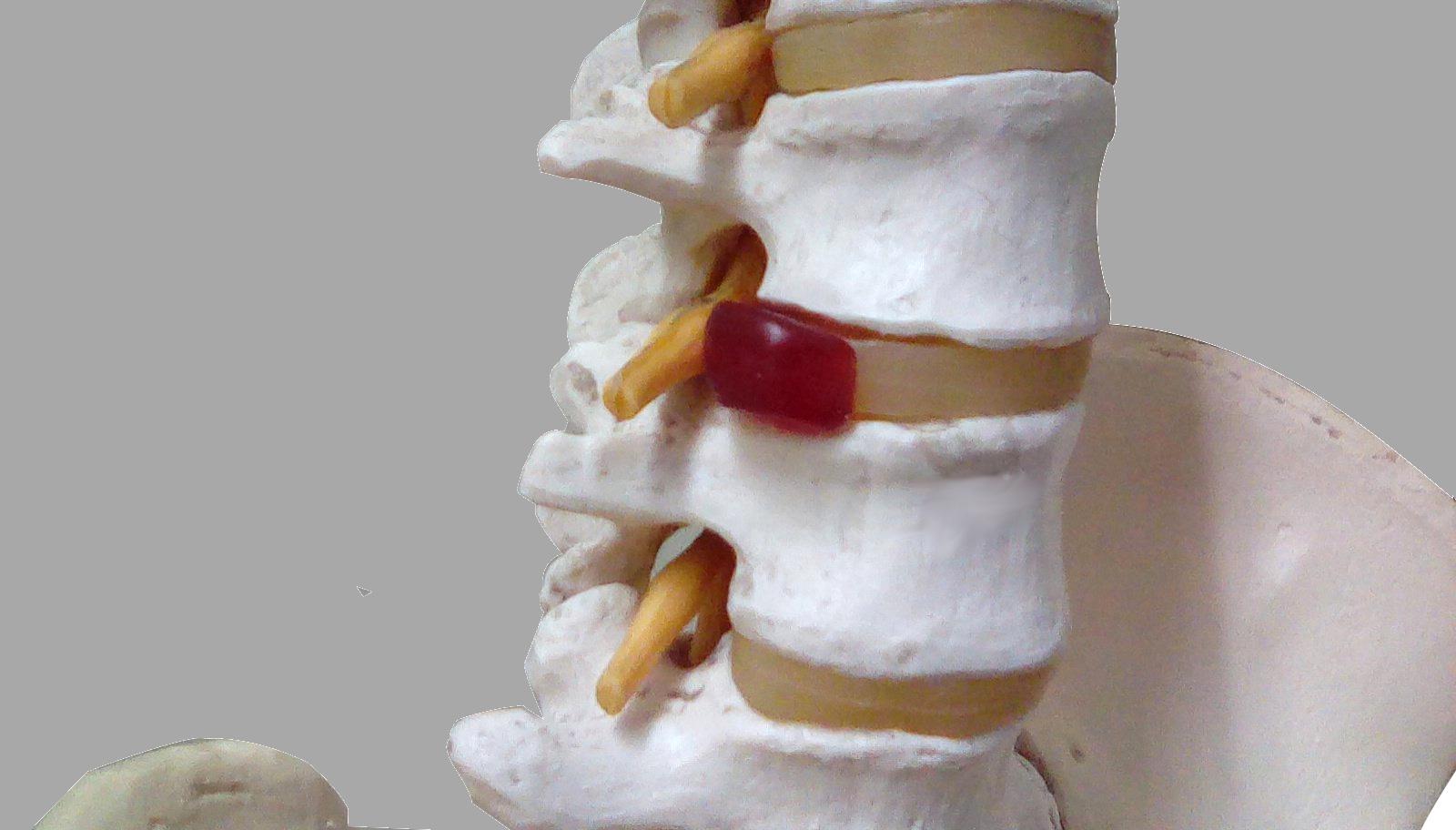 ぎっくり腰…急性腰痛|仙台市若林区河原町 山浦整骨院 院長のよもやま日記